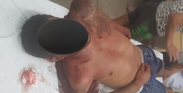 Homem de 28 anos morre após ser alvejado por seis vezes em Peixoto de Azevedo