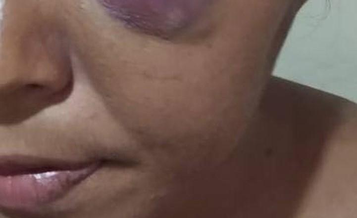 Marido é preso suspeito de espancar mulher em quarto de hotel por 3 dias